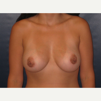 25-34 year old woman treated with Breast Augmentation after 2725628