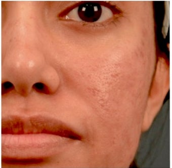 18-24 year old woman treated with Acne Scars Treatment 1961280