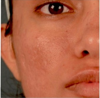 18-24 year old woman treated with Acne Scars Treatment after 1961280