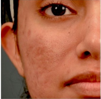 18-24 year old woman treated with Acne Scars Treatment before 1961280