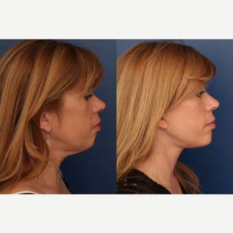 45-54 year old woman treated with Chin Implant before 3705859
