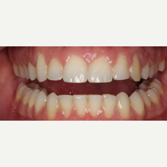 25-34 year old man treated with Braces after 3188479