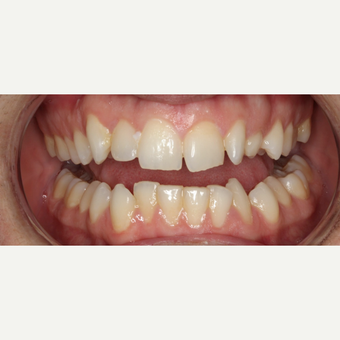 25-34 year old man treated with Braces before 3188479