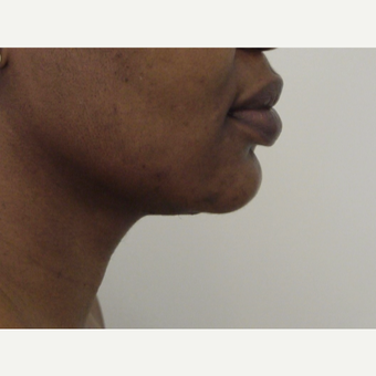 45-54 year old woman treated with Chin Liposuction after 3618575