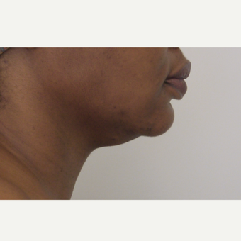 45-54 year old woman treated with Chin Liposuction before 3618575