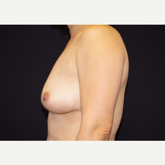 35-44 year old woman treated with Breast Implants before 3441109