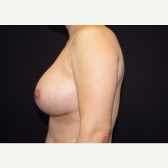 35-44 year old woman treated with Breast Implants after 3441109
