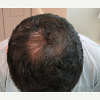 35-44 year old man treated with Hair Loss Treatment after 1564045