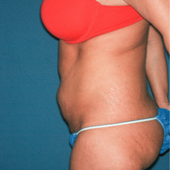 35-44 year old woman treated with Tummy Tuck before 3371610
