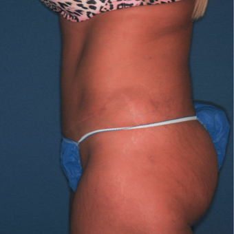 35-44 year old woman treated with Tummy Tuck after 3371610