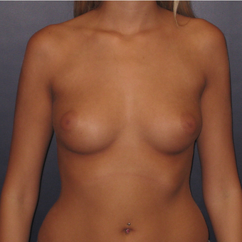 18-24 year old woman treated with Breast Augmentation before 2725510