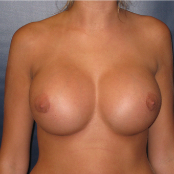 18-24 year old woman treated with Breast Augmentation after 2725510