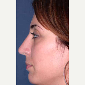 35-44 year old woman treated with Rhinoplasty after 3521226