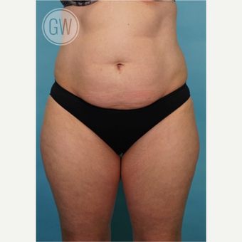 35-44 year old woman treated with Liposculpture before 3016648