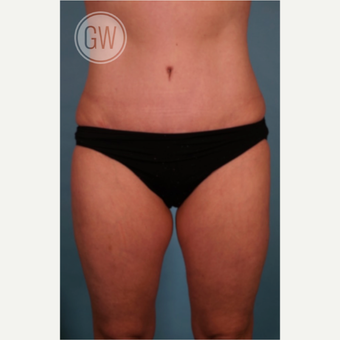 35-44 year old woman treated with Liposculpture after 3016648