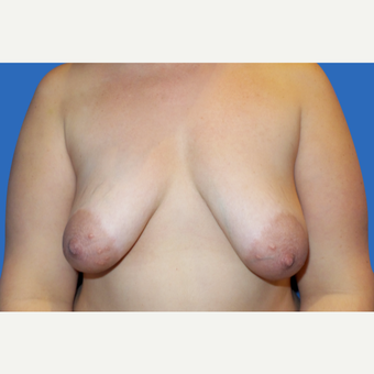 35-44 year old woman treated with Breast Lift with Implants before 3286473