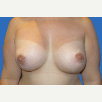 35-44 year old woman treated with Breast Lift with Implants after 3286473