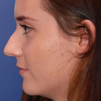 18-24 year old woman treated with Rhinoplasty before 3624138