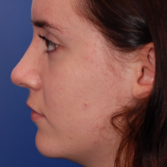 18-24 year old woman treated with Rhinoplasty after 3624138