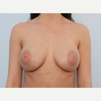 Breast Implant Exchange after 2966284
