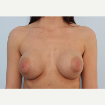 Breast Implant Exchange before 2966284