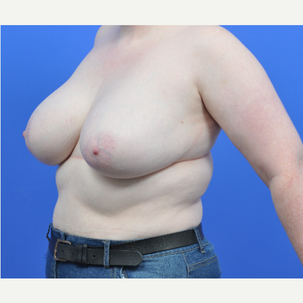 18-24 year old woman treated with Breast Reduction before 3520530
