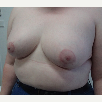 18-24 year old woman treated with Breast Reduction after 3520530