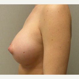 Breast Augmentation after 3681042