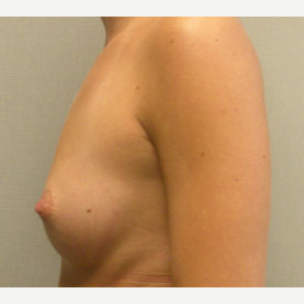 Breast Augmentation before 3681042
