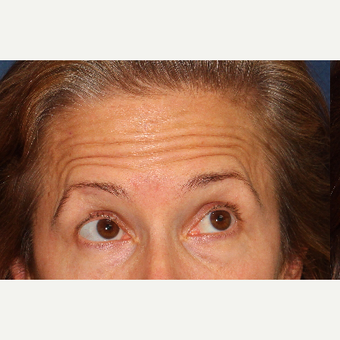 45-54 year old woman treated with Botox before 3220063