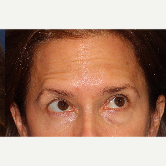 45-54 year old woman treated with Botox after 3220063