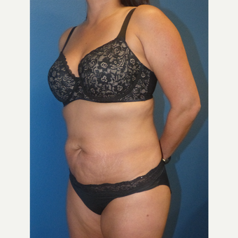 35-44 year old woman treated with Tummy Tuck before 3595831