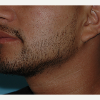 25-34 year old man treated with SmartGraft Hair Transplant to the beard for hypotrichia after 3060024