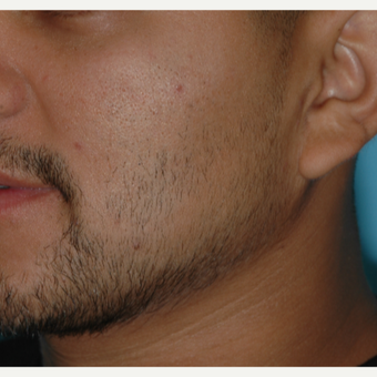 25-34 year old man treated with SmartGraft Hair Transplant to the beard for hypotrichia before 3060024