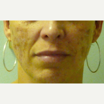 IPL Photo Facial for Melasma