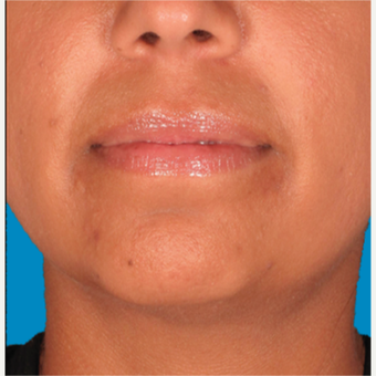 "35-44 year old woman treated with Kybella for corruption of sub mental fullness /""double chin"" before 2334980"