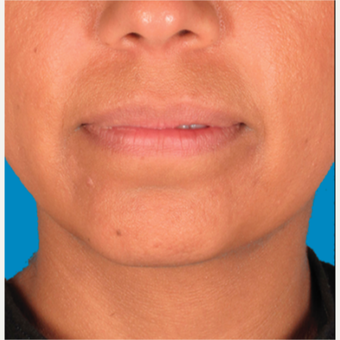 "35-44 year old woman treated with Kybella for corruption of sub mental fullness /""double chin"" after 2334980"