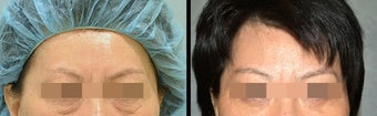 Lower Eyelid(Blepharoplasty) Surgery before 656738
