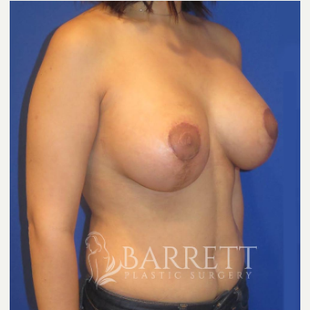 25-34 year old woman treated with Breast Lift after 3584620