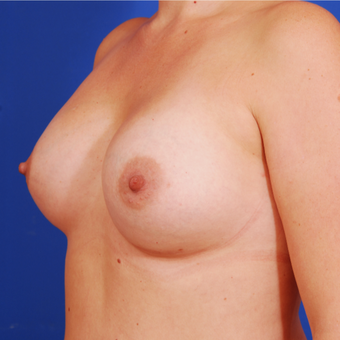 25-34 year old woman treated with Breast Augmentation after 3589387