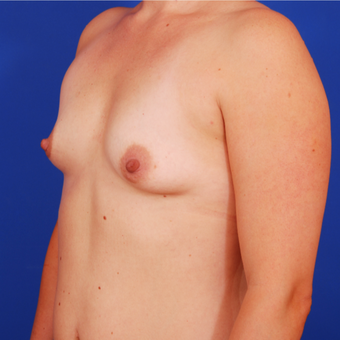25-34 year old woman treated with Breast Augmentation before 3589387