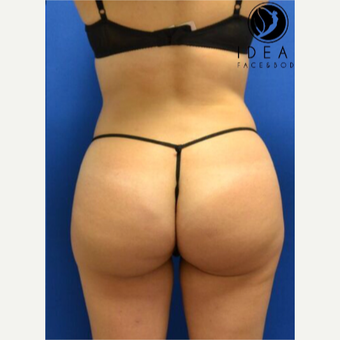 Laser Liposuction with Fat Transfer after 3259998
