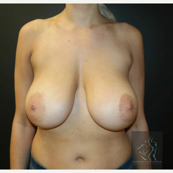 25-34 year old woman treated with Breast Lift before 3109626