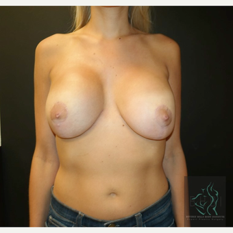 25-34 year old woman treated with Breast Lift after 3109626