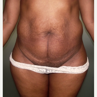 18-24 year old woman treated with Tummy Tuck before 2689806