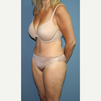 45-54 year old woman treated with Tummy Tuck after 3558603