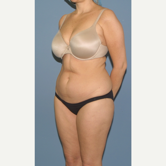 45-54 year old woman treated with Tummy Tuck before 3558603