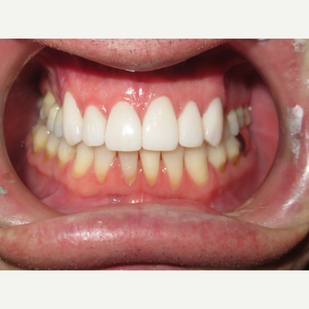 45-54 year old man treated with Porcelain Veneers after 3339005