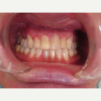 45-54 year old man treated with Porcelain Veneers before 3339005