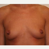 25-34 year old woman treated with Breast Implants before 3303904